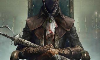 Bloodborne 2 : Amazon fait fuiter le jeu, une annonce bientôt prévue ? Premiers détails