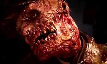 Call of Duty WW2 : le trailer du mode Zombies a fuité et il est bien dégueulasse comme il faut