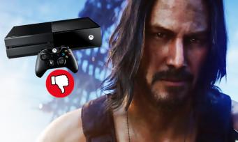 """Cyberpunk 2077 : le jeu aurait été retardé à cause """"du manque de puissance"""" de la Xbox One"""