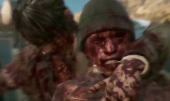 Metal Gear Solid 5 : des scènes avec Quiet d'une extrême violence ! [SPOILERS]