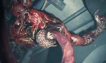 Resident Evil 2 : une nouvelle vidéo de gameplay avec les Lickers, ils font vraiment flipper