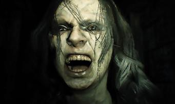 Resident Evil 7 : ça y est, la barre des 10 millions de copies vendues a été franchie