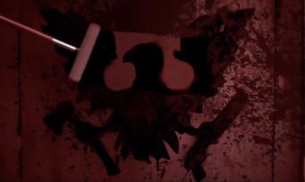 State of Decay 2 annoncé en exclusivité sur Xbox One à l'E3 !